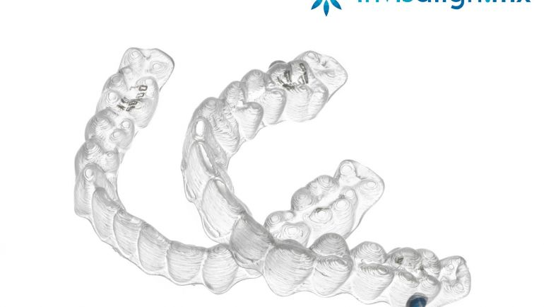 ¿Cómo Funciona Invisalign, la Ortodoncia Sin Brackets?