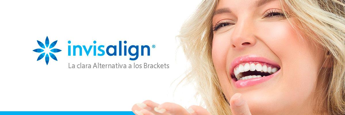 invisalign-alternativa-a-los-brackets-ortodoncia